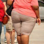 elhízás, obesitas